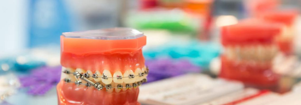 dental-medicine-equipment-orthodontic-P26PD4A (1)