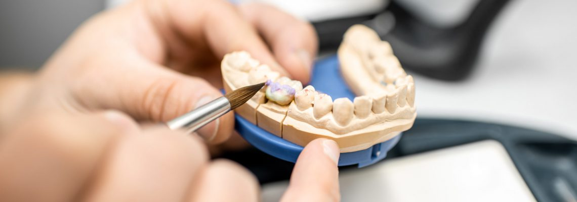 Dental technician coloring dental prosthesis with a paint brush at the laboratory, close-up view. Concept of implantats producing