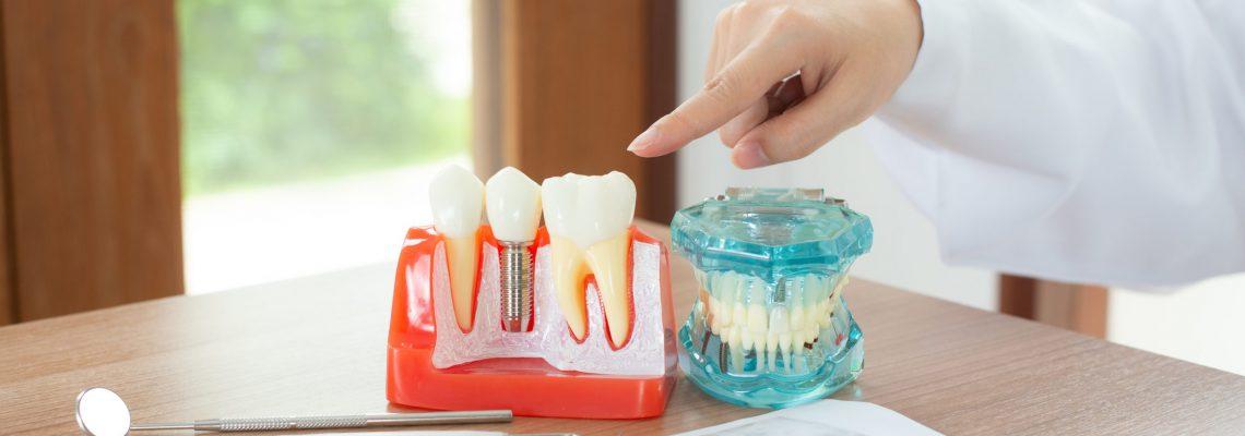 Dentist with dental implant model.