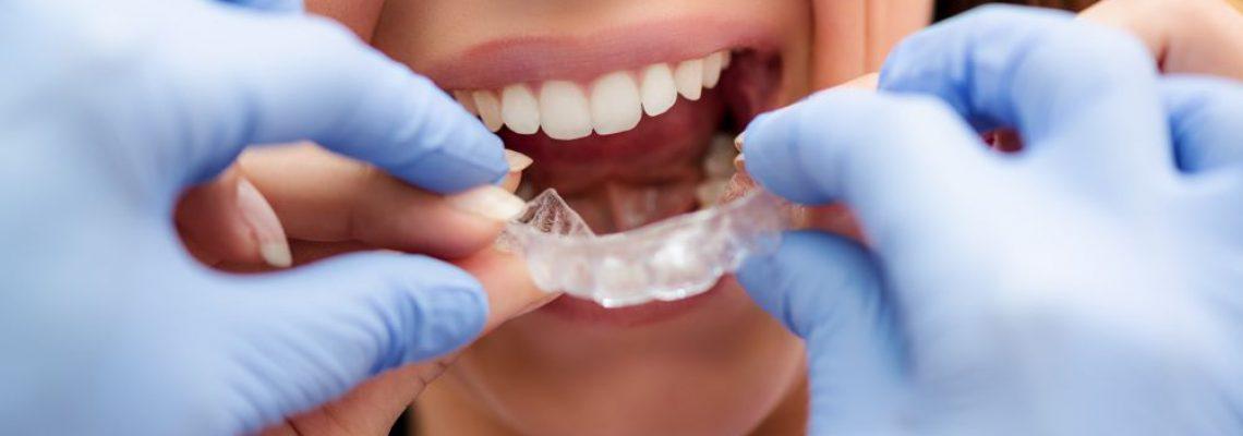 invisible-braces-P7RJ6FD (1)
